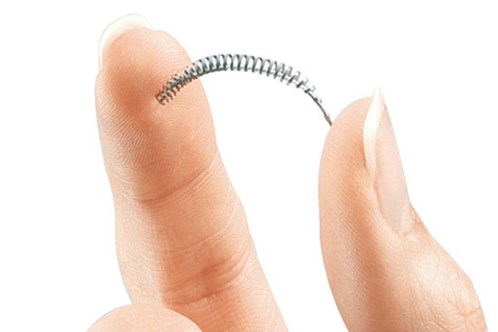 Essure_Class-Action_Lawsuitr