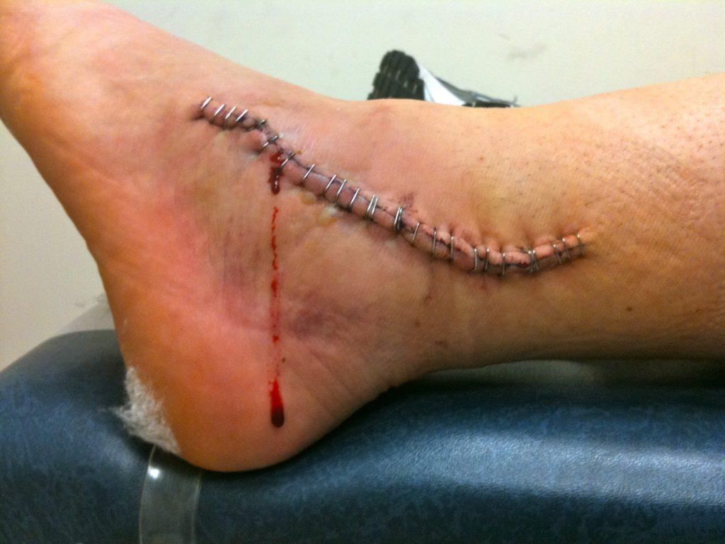 ankle_surgery_malpractice_lawsuit