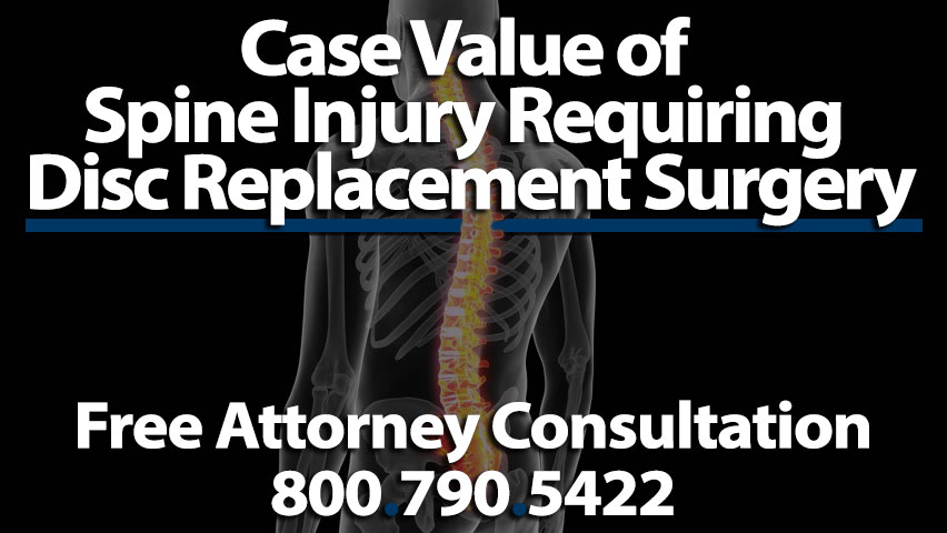 Average Settlement For Herniated Disc Car Accident In Texas - The