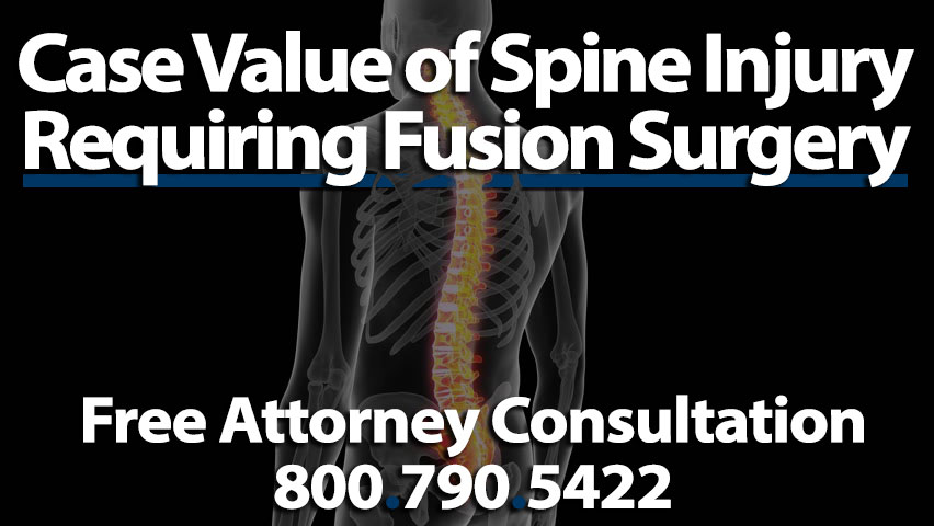 Average Settlements Spinal Fusion Injury Case Worth Compensation