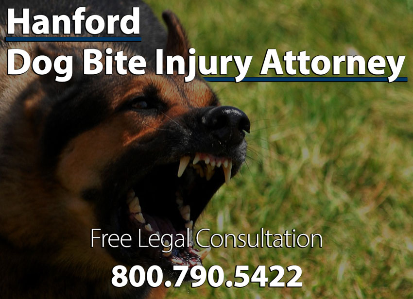Dog Bite Lawyer in Hanford Sue for Damages|Dog Bite Injuries