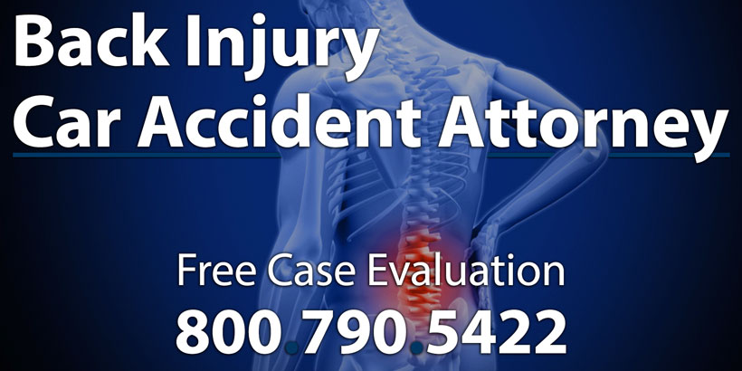 Back And Neck Injury Lawyer St Louis