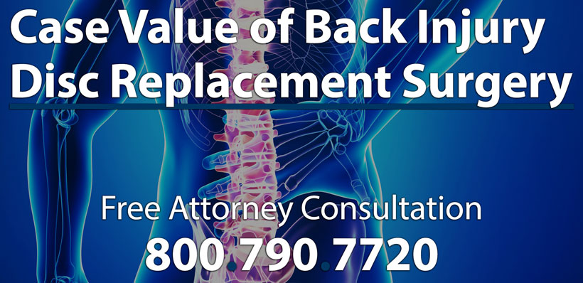 Average Settlements Disc Replacement Surgery Case Worth