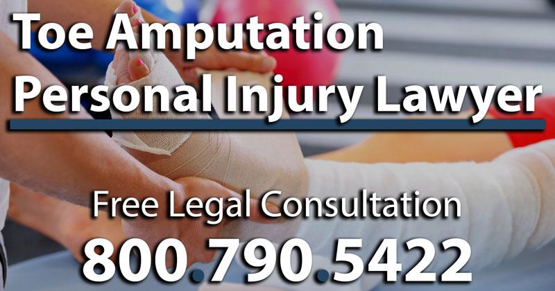 Toe Amputation Injury Attorney Amputated Cut Off Severed